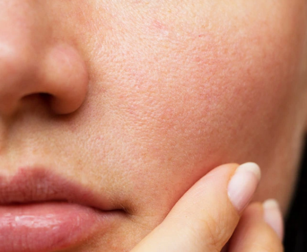 That which you Have to know Regarding Hide Make-up As well as Chemical substance Pores and skin Peel off