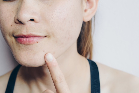 Remedy Acne breakouts within Just a couple Times — Superb as well as Extremely Efficient Suggestions to eliminate Unsightly Breakouts