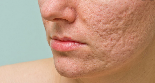 Eliminate Acne scarring — Efficient Remedy With regard to Acne scarring