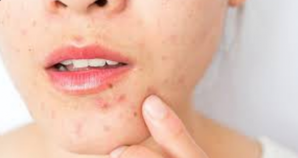 Grownup Acne breakouts Remedy — Every thing You should know and much more!