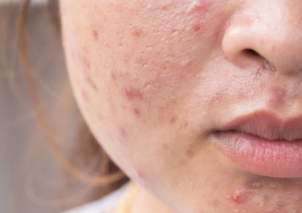 Cause of Crazy Burdock With regard to Acne breakouts